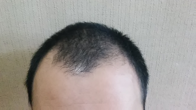 ミノキシジルは額の生え際にも効果が出るの? - AGA(男性型 ...